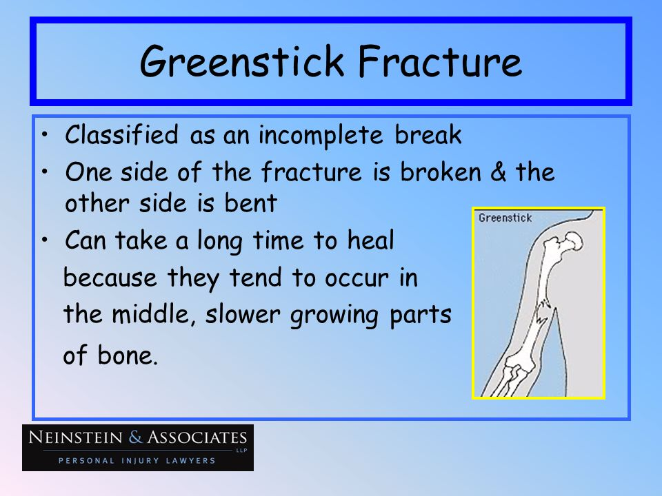 Greenstick Fracture Classified as an incomplete break One side of the fracture is broken & the other side is bent Can take a long time to heal because