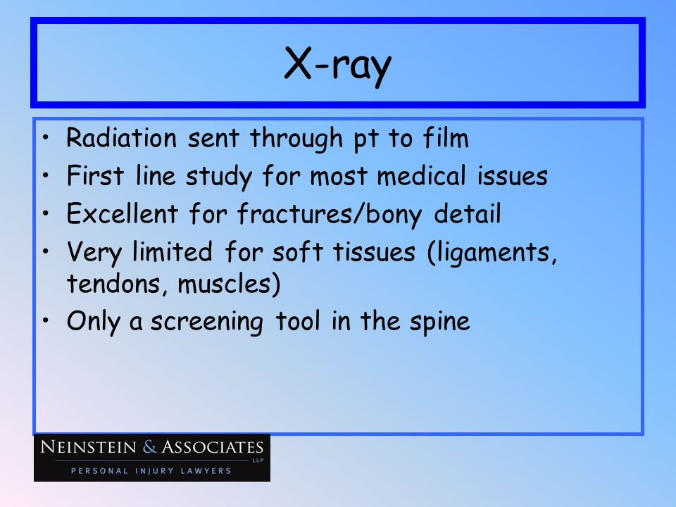 X-ray Radiation sent through pt to film First line study for most medical issues Excellent for fractures/bony detail Very limited for soft tissues (li