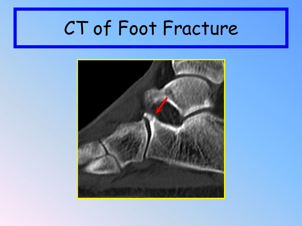 CT of Foot Fracture