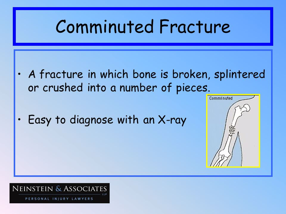 Comminuted Fracture A fracture in which bone is broken, splintered or crushed into a number of pieces. Easy to diagnose with an X-ray