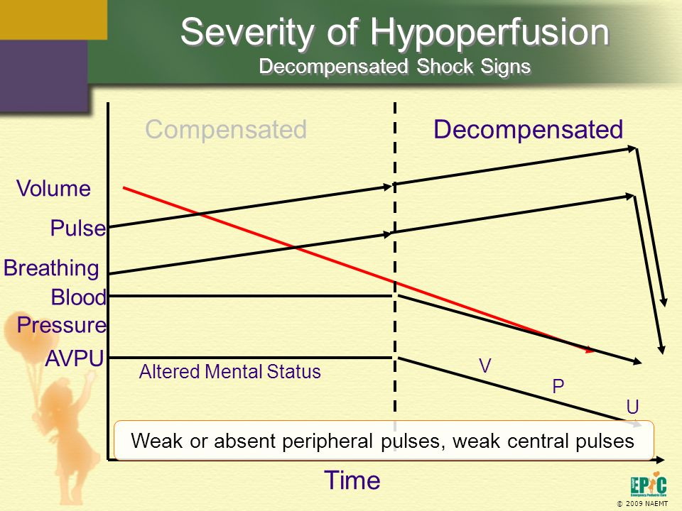 © 2009 NAEMT Severity of Hypoperfusion Decompensated Shock Signs Volume Altered Mental Status Decompensated AVPU Time Breathing Pulse Blood Pressure V P U Weak or absent peripheral pulses, weak central pulses Compensated