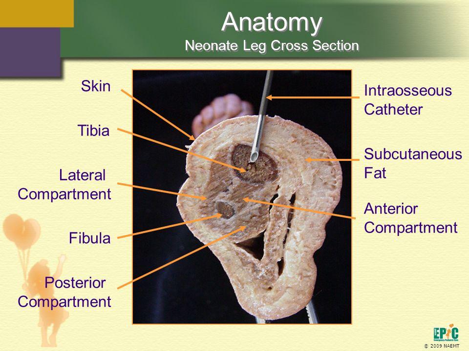 © 2009 NAEMT Anatomy Neonate Leg Cross Section Skin Subcutaneous Fat Intraosseous Catheter Tibia Fibula Posterior Compartment Anterior Compartment Lat