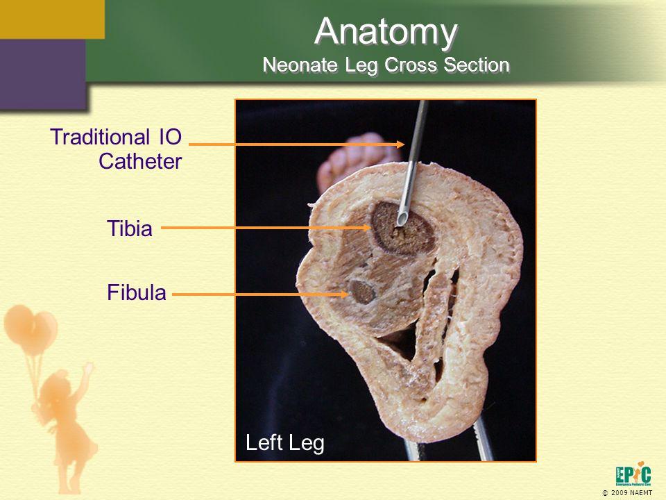 © 2009 NAEMT Anatomy Neonate Leg Cross Section Fibula Traditional IO Catheter Tibia Left Leg