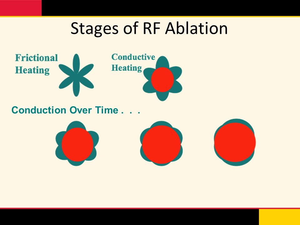Stages of RF Ablation Conduction Over Time...