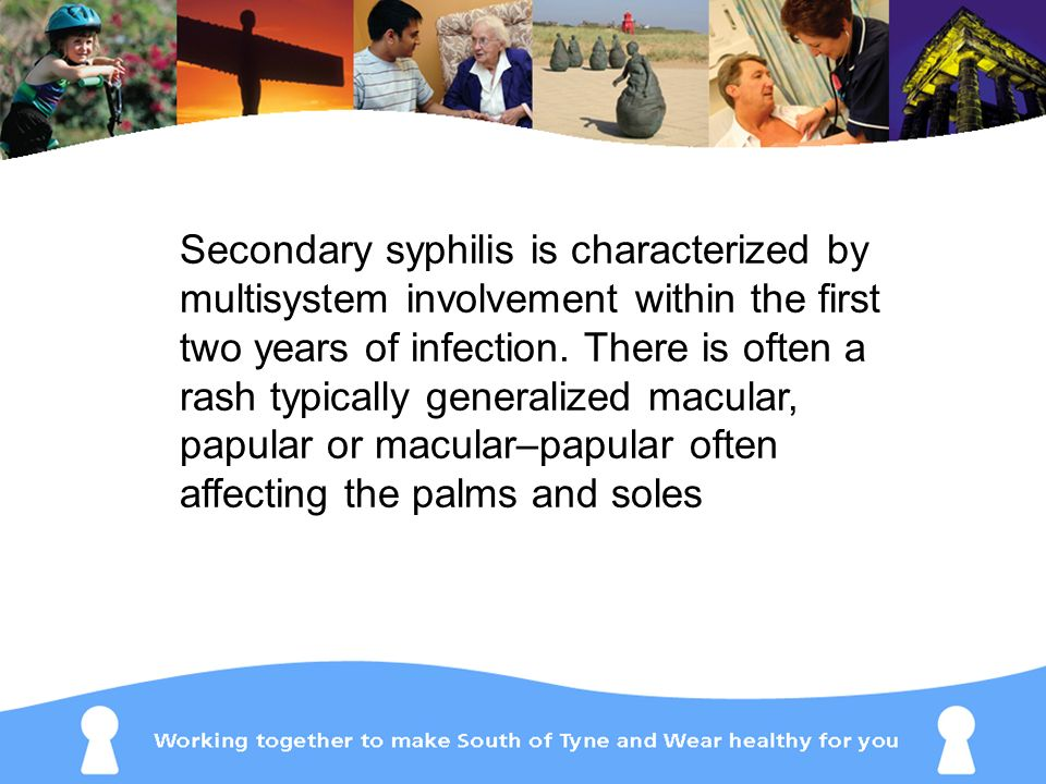Secondary syphilis is characterized by multisystem involvement within the first two years of infection. There is often a rash typically generalized ma