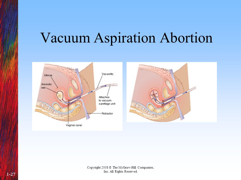 Copyright 2008 © The McGraw-Hill Companies, Inc. All Rights Reserved. 1-27 Vacuum Aspiration Abortion