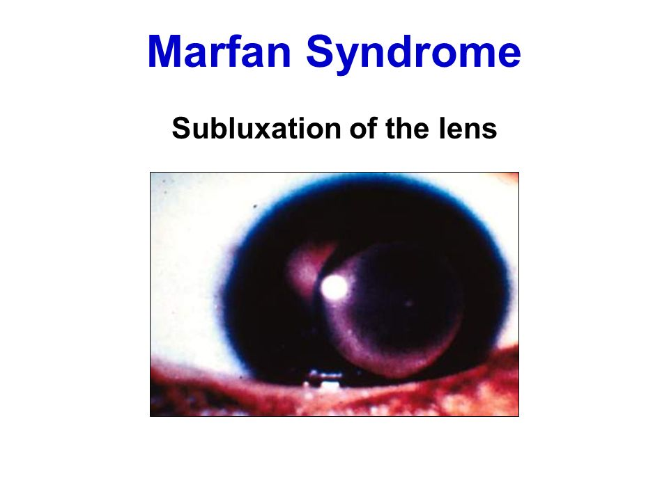 Marfan Syndrome Subluxation of the lens
