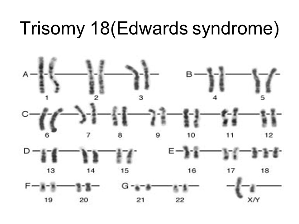Trisomy 18(Edwards syndrome)