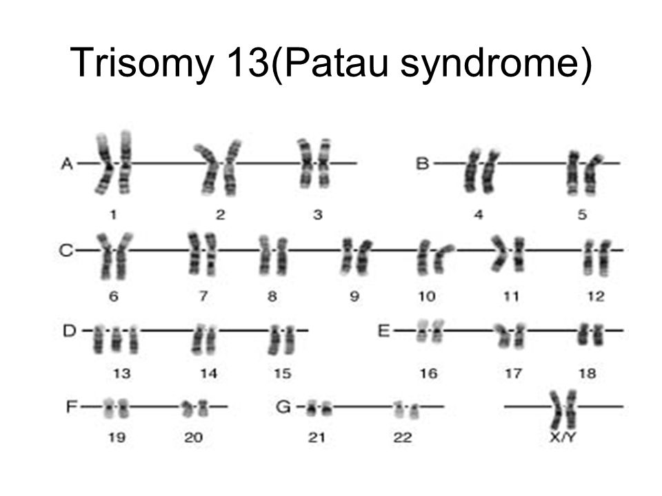 Trisomy 13(Patau syndrome)