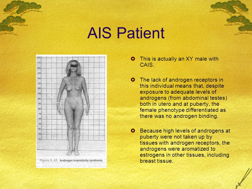 AIS Patient This is actually an XY male with CAIS. The lack of androgen receptors in this individual means that, despite exposure to adequate levels o
