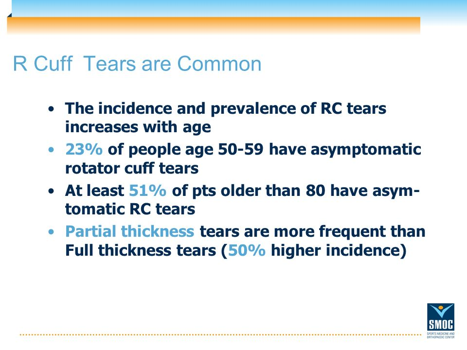 R Cuff Tears are Common The incidence and prevalence of RC tears increases with age 23% of people age 50-59 have asymptomatic rotator cuff tears At le
