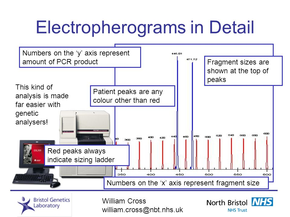 William Cross william.cross@nbt.nhs.uk Electropherograms in Detail Red peaks always indicate sizing ladder Numbers on the x axis represent fragment si