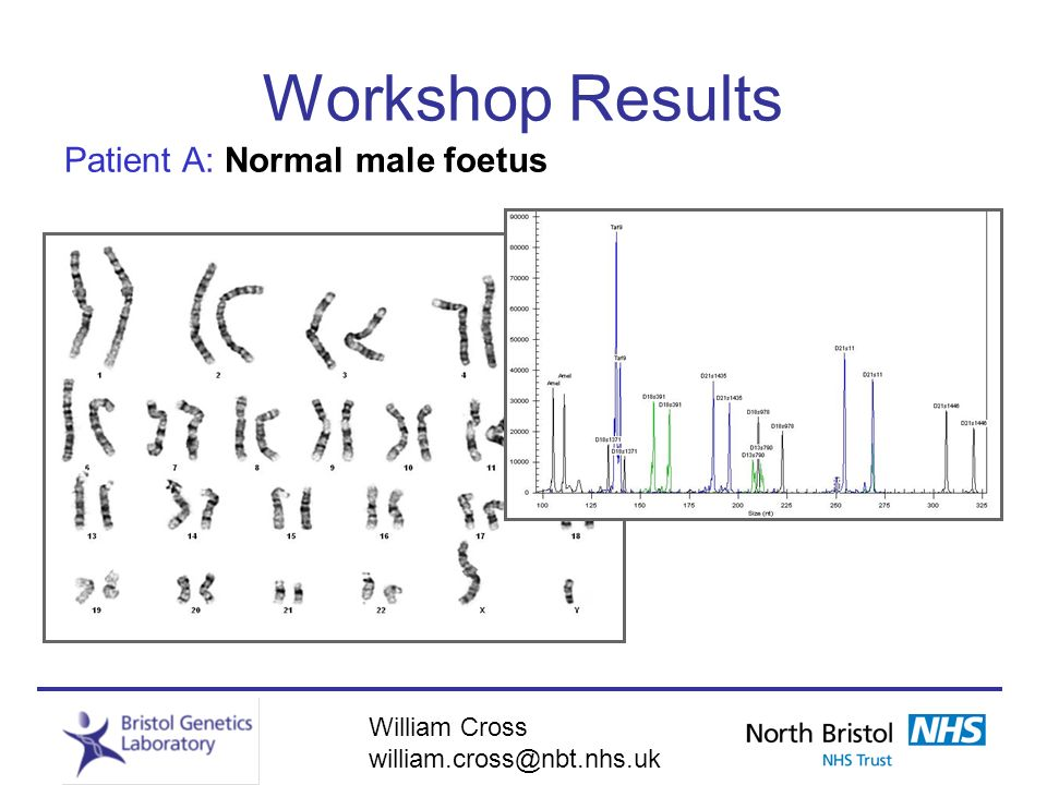William Cross william.cross@nbt.nhs.uk Workshop Results Patient A: Normal male foetus