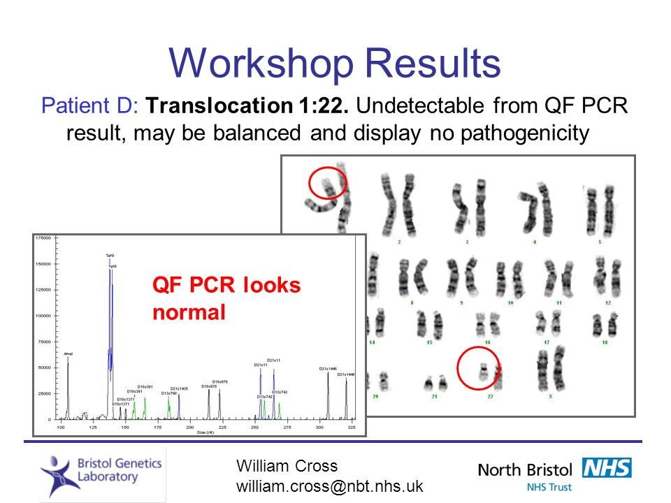William Cross william.cross@nbt.nhs.uk Workshop Results Patient D: Translocation 1:22. Undetectable from QF PCR result, may be balanced and display no