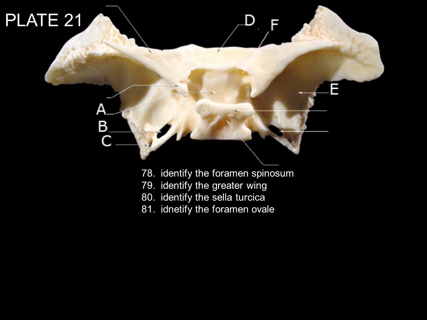 PLATE 21 78. identify the foramen spinosum 79. identify the greater wing 80. identify the sella turcica 81. idnetify the foramen ovale