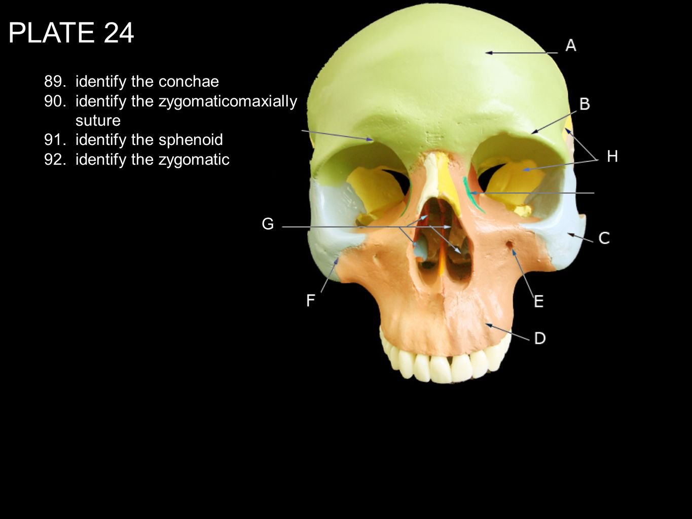 PLATE 24 89. identify the conchae 90. identify the zygomaticomaxially suture 91. identify the sphenoid 92. identify the zygomatic G H