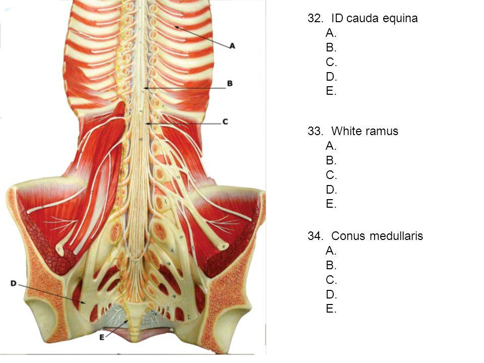 32. ID cauda equina A. B. C. D. E. 33. White ramus A. B. C. D. E. 34. Conus medullaris A. B. C. D. E.