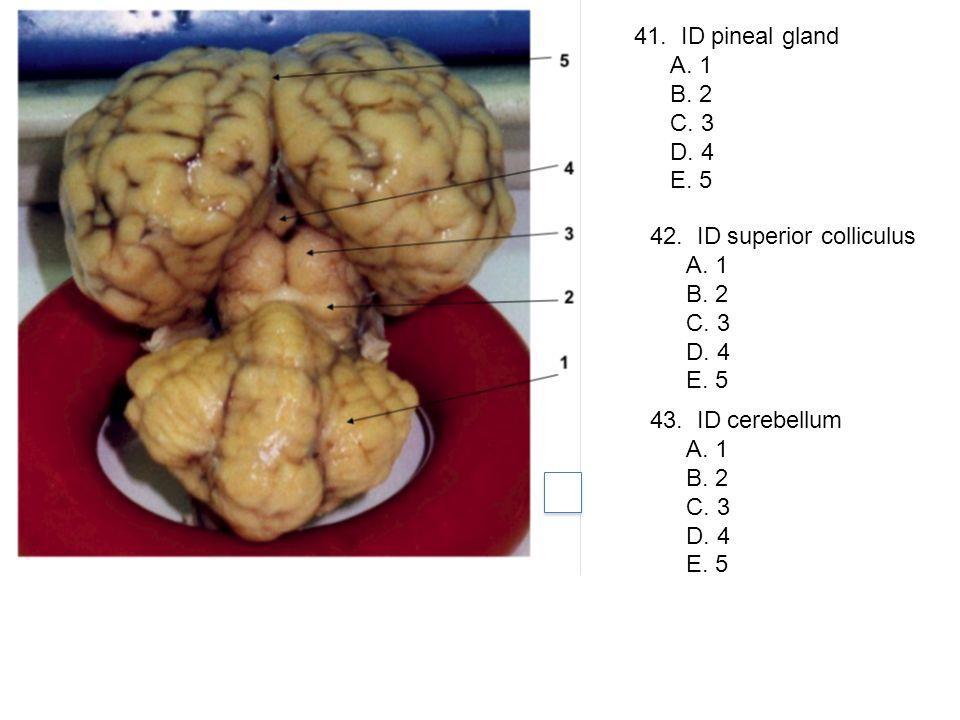 41. ID pineal gland A. 1 B. 2 C. 3 D. 4 E. 5 42. ID superior colliculus A. 1 B. 2 C. 3 D. 4 E. 5 43. ID cerebellum A. 1 B. 2 C. 3 D. 4 E. 5