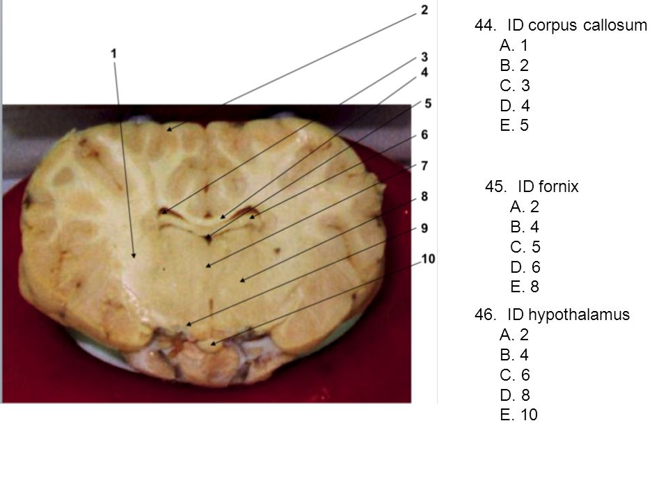 44. ID corpus callosum A. 1 B. 2 C. 3 D. 4 E. 5 45. ID fornix A. 2 B. 4 C. 5 D. 6 E. 8 46. ID hypothalamus A. 2 B. 4 C. 6 D. 8 E. 10