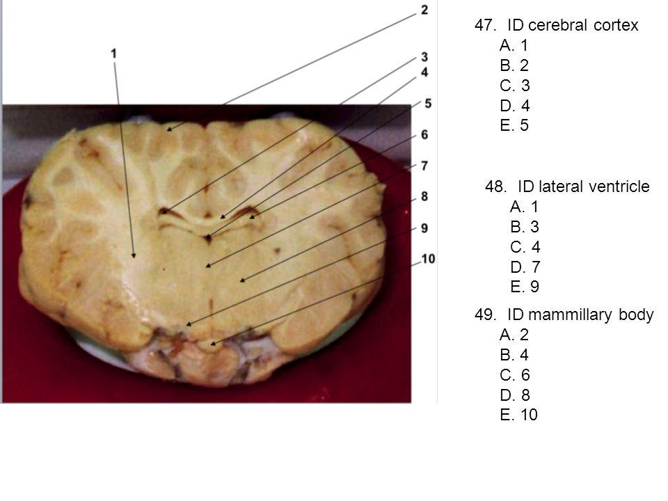 47. ID cerebral cortex A. 1 B. 2 C. 3 D. 4 E. 5 48. ID lateral ventricle A. 1 B. 3 C. 4 D. 7 E. 9 49. ID mammillary body A. 2 B. 4 C. 6 D. 8 E. 10
