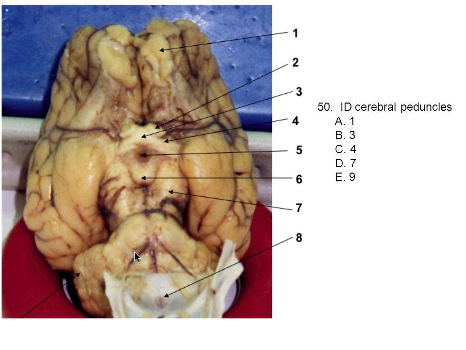 50. ID cerebral peduncles A. 1 B. 3 C. 4 D. 7 E. 9