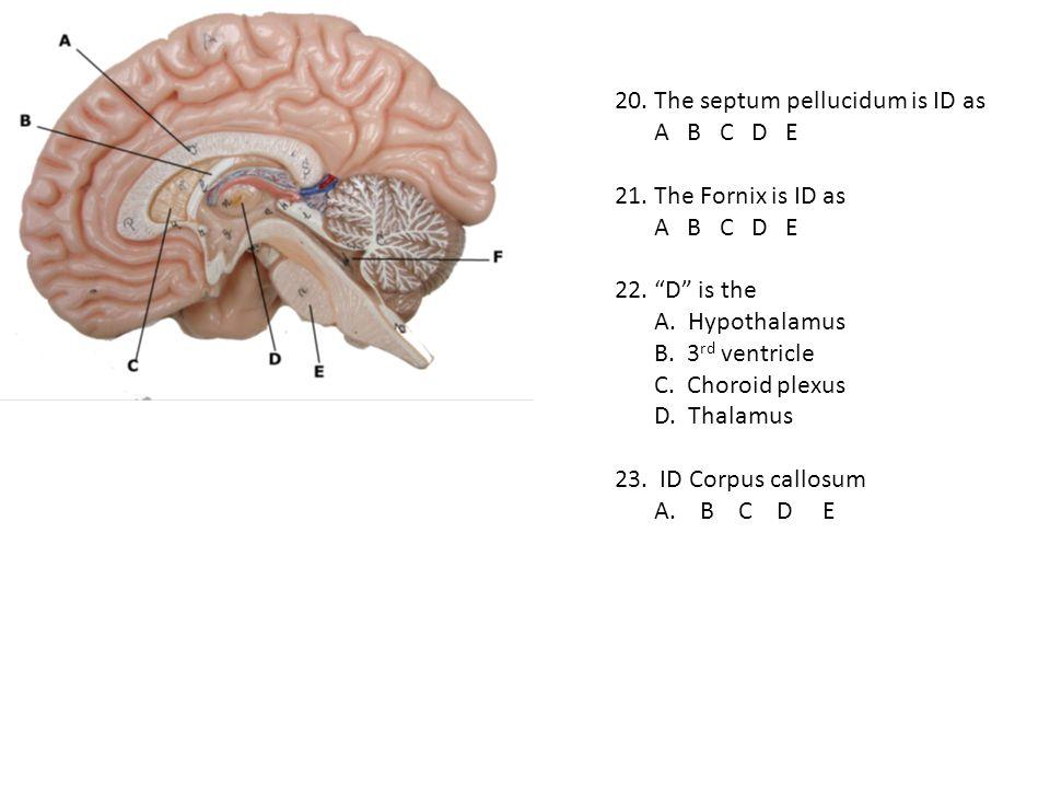 20. The septum pellucidum is ID as A B C D E 21. The Fornix is ID as A B C D E 22. D is the A. Hypothalamus B. 3 rd ventricle C. Choroid plexus D. Tha