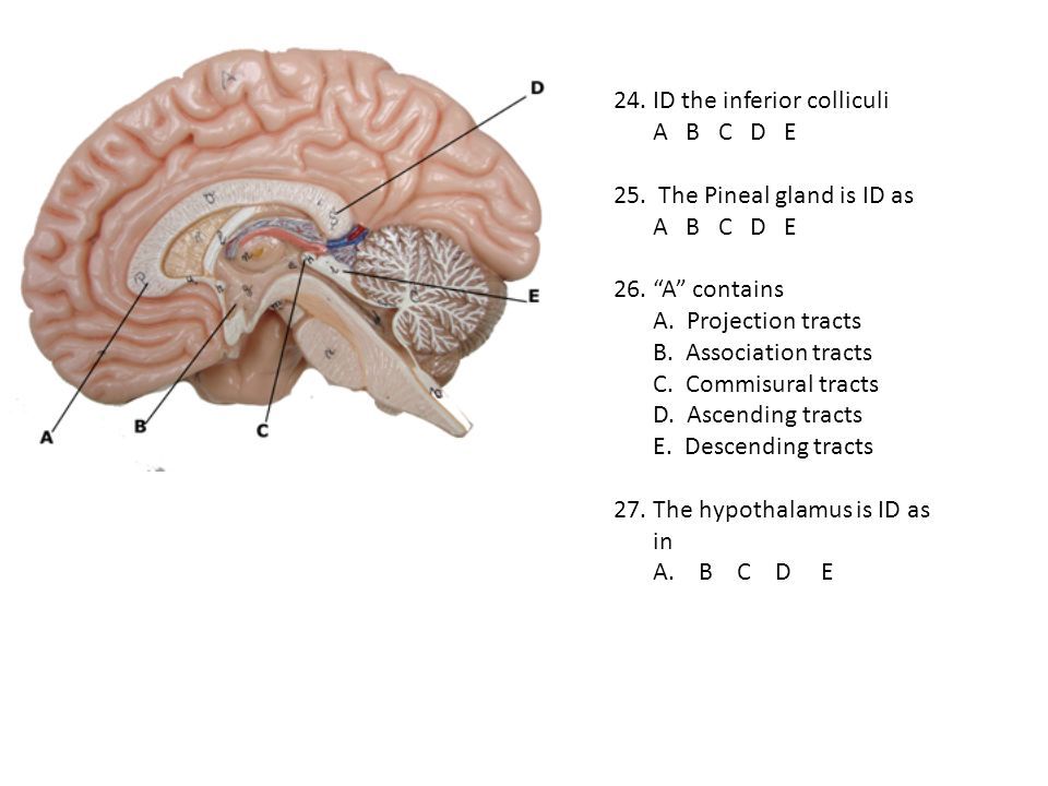 24. ID the inferior colliculi A B C D E 25. The Pineal gland is ID as A B C D E 26. A contains A. Projection tracts B. Association tracts C. Commisura