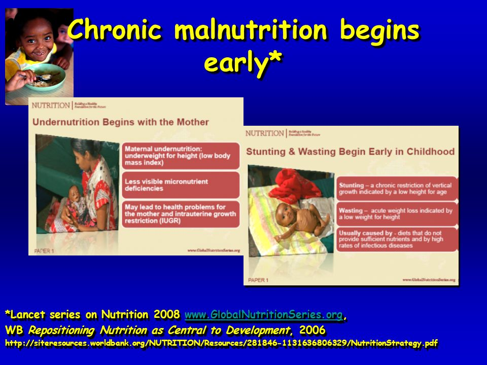 Chronic malnutrition begins early* *Lancet series on Nutrition 2008 www.GlobalNutritionSeries.org, www.GlobalNutritionSeries.org WB Repositioning Nutrition as Central to Development, 2006 http://siteresources.worldbank.org/NUTRITION/Resources/281846-1131636806329/NutritionStrategy.pdf *Lancet series on Nutrition 2008 www.GlobalNutritionSeries.org, www.GlobalNutritionSeries.org WB Repositioning Nutrition as Central to Development, 2006 http://siteresources.worldbank.org/NUTRITION/Resources/281846-1131636806329/NutritionStrategy.pdf