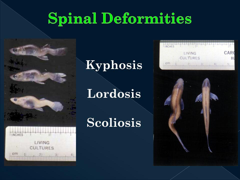 Kyphosis Lordosis Scoliosis