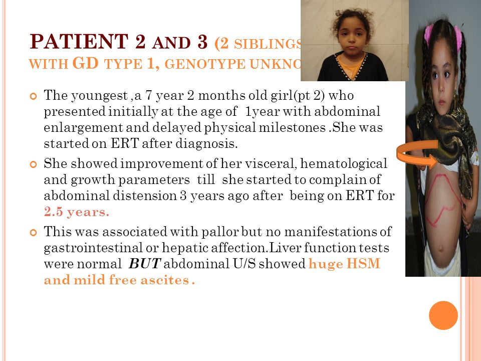PATIENT 2 AND 3 (2 SIBLINGS WITH GD TYPE 1, GENOTYPE UNKNOWN ) The youngest,a 7 year 2 months old girl(pt 2) who presented initially at the age of 1year with abdominal enlargement and delayed physical milestones.She was started on ERT after diagnosis.