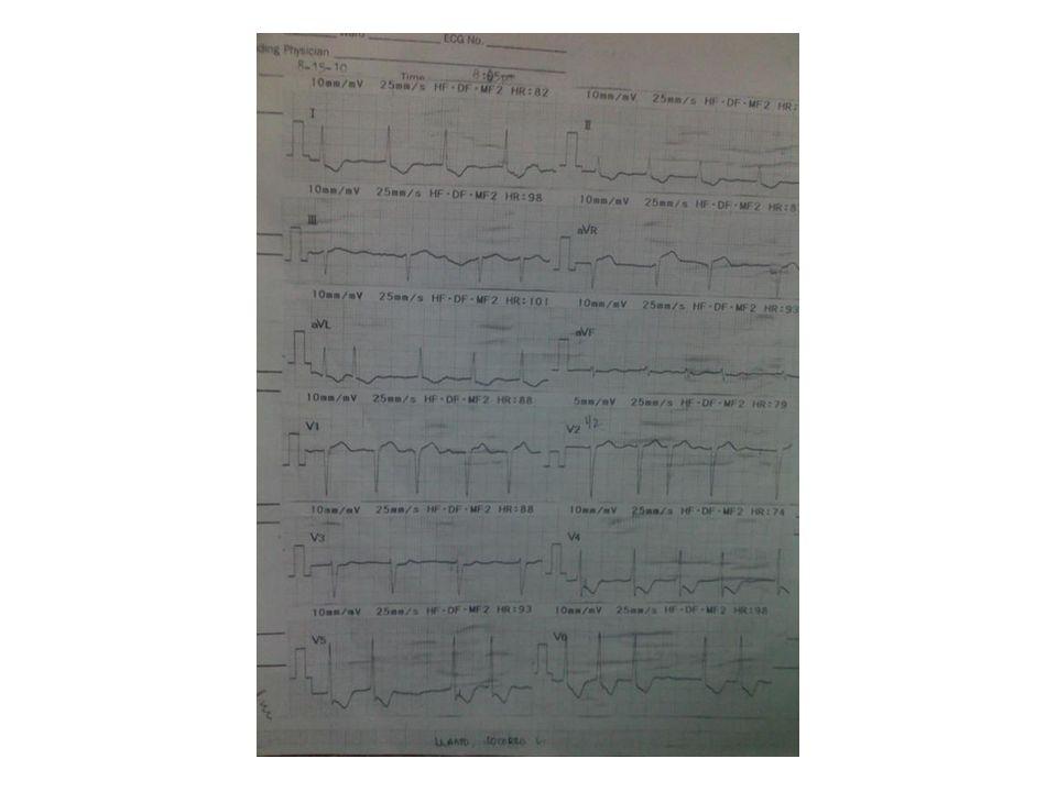 ER stay Isodril 5mg 3x Aspirin 925 mg Clopidogrel 75 mg/ tab Atorvastatin 80 mg Esomeprazole 40 mg/IV