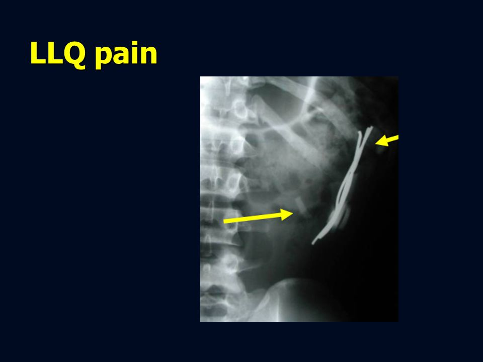 LLQ pain