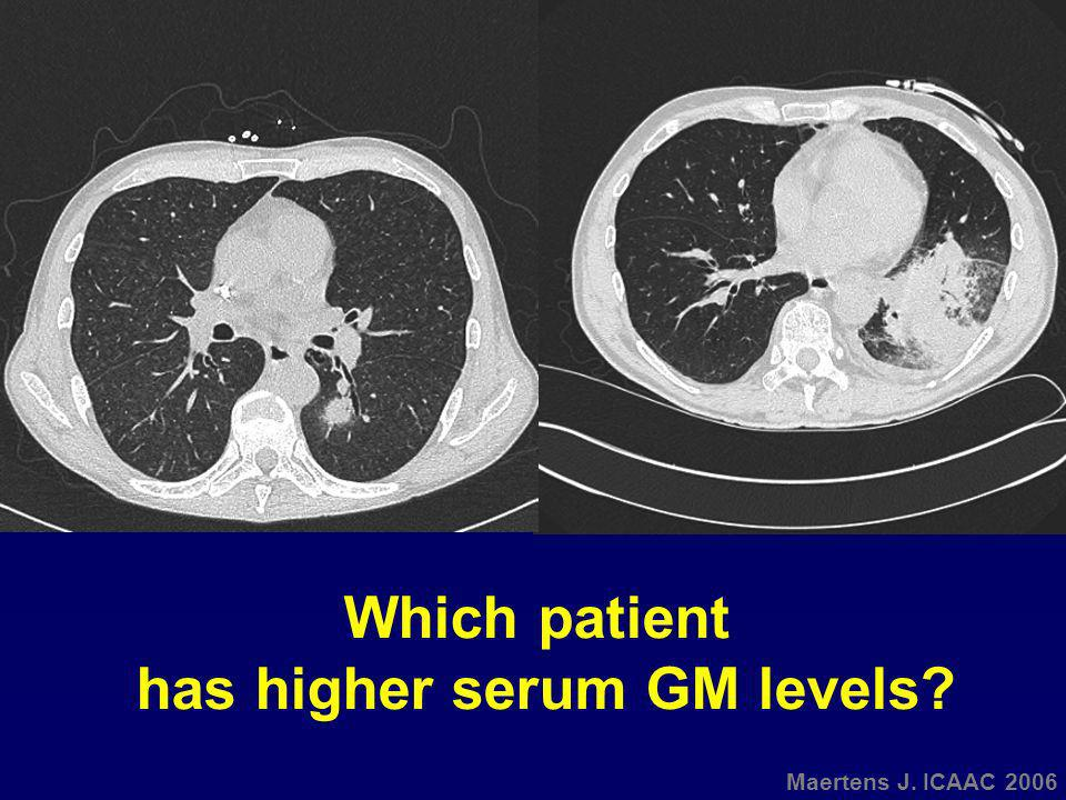 Which patient has higher serum GM levels?