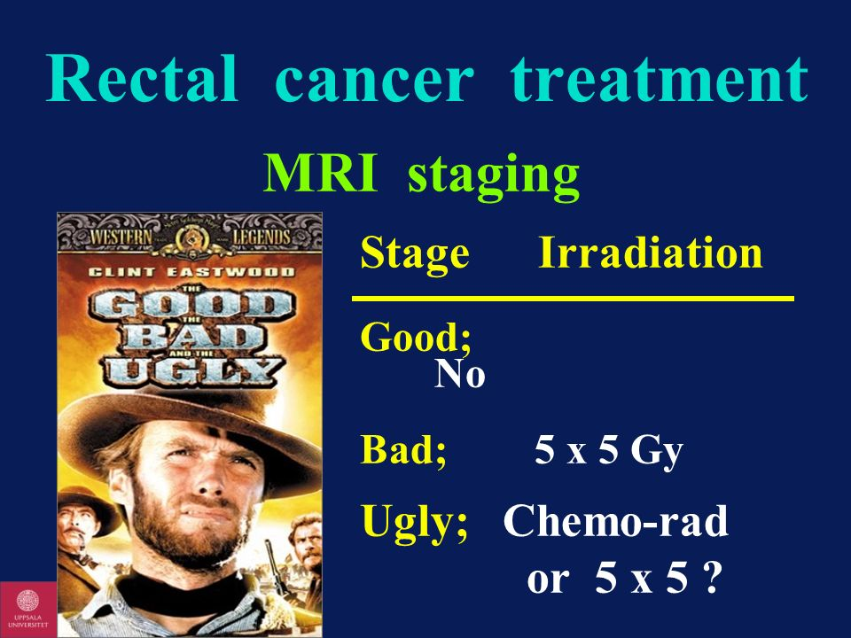 Rectal cancer treatment MRI staging Stage Irradiation Good; No Bad; 5 x 5 Gy Ugly;Chemo-rad or 5 x 5 ?