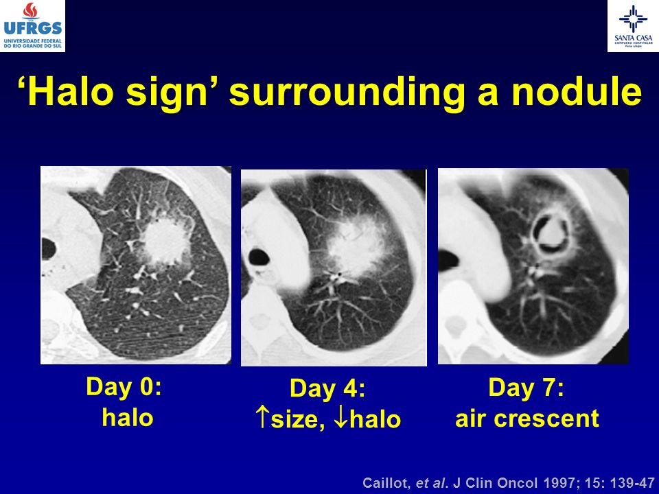 Day 0: halo Day 4: size, halo Day 7: air crescent Caillot, et al. J Clin Oncol 1997; 15: 139-47 Halo sign surrounding a nodule