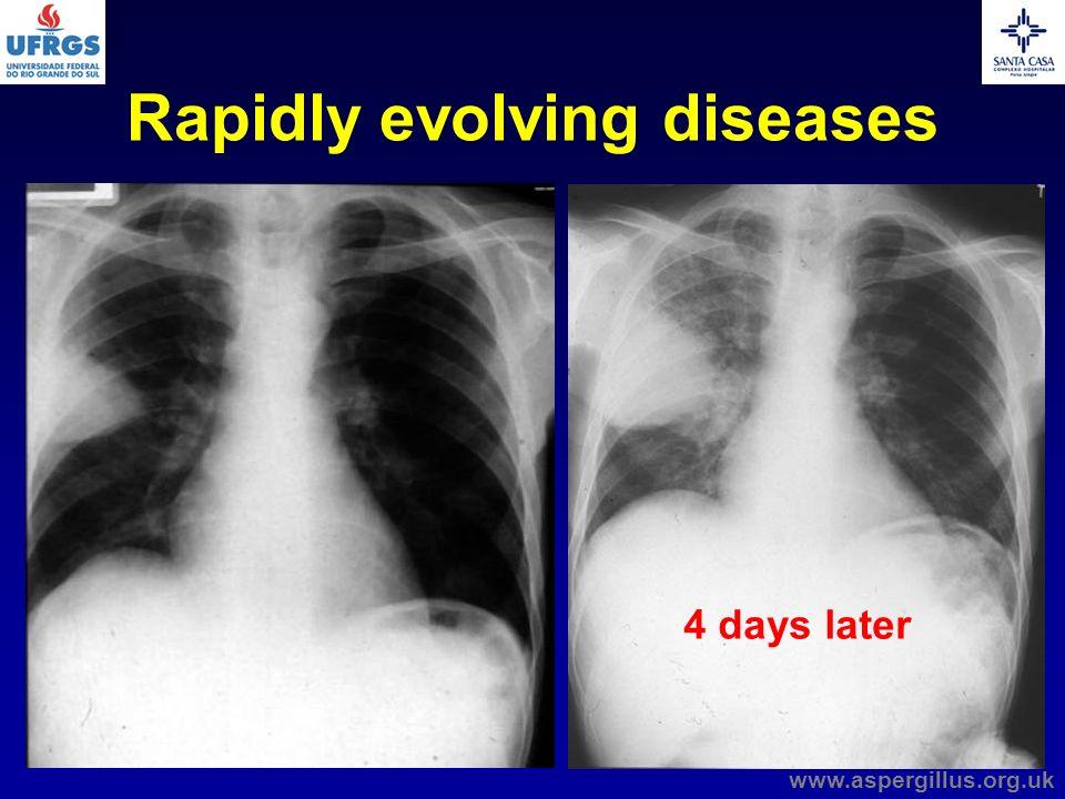 4 days later Rapidly evolving diseases www.aspergillus.org.uk