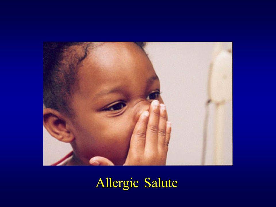 Allergic Salute