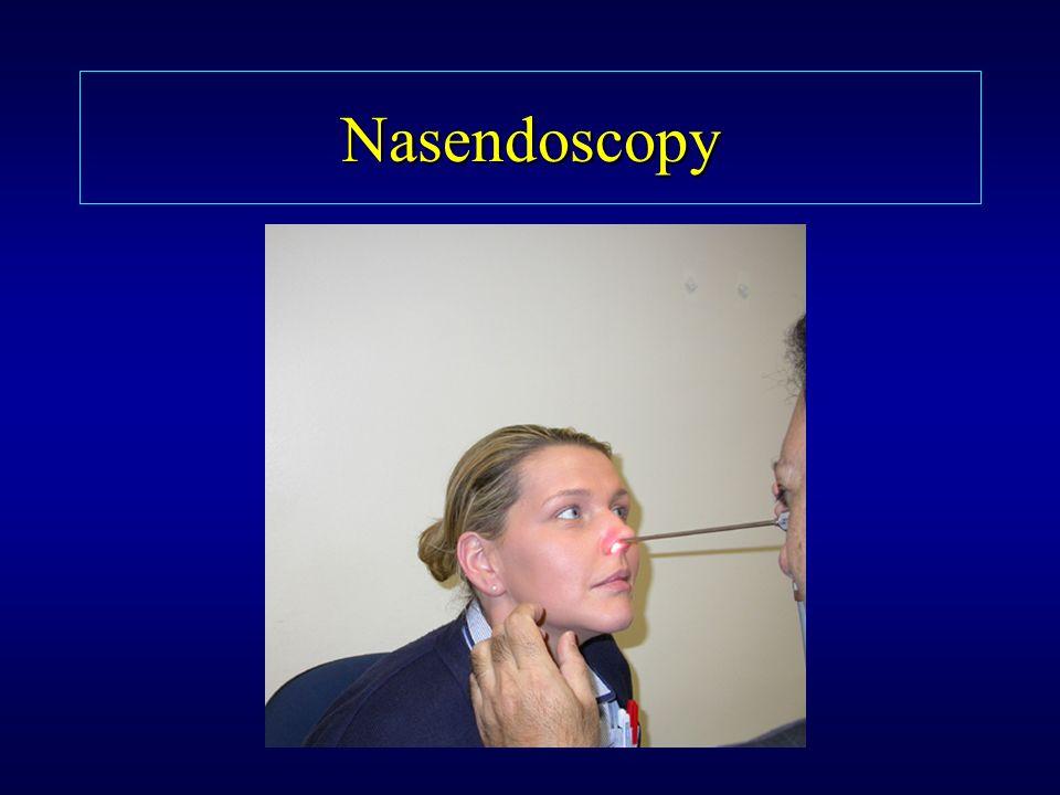 Nasendoscopy