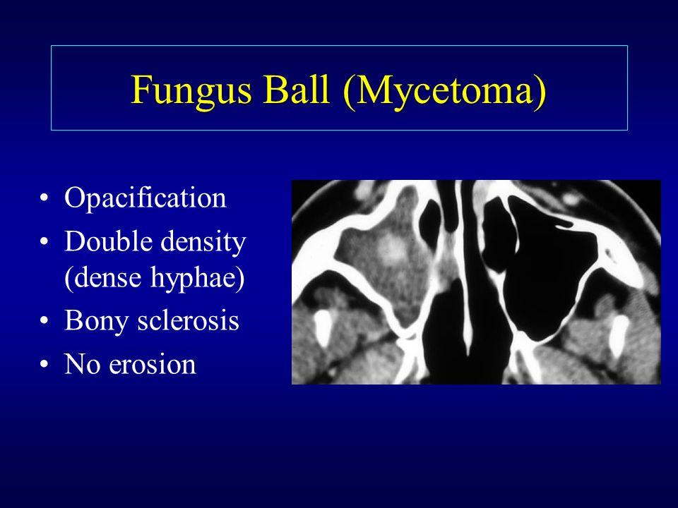 Fungus Ball (Mycetoma) Opacification Double density (dense hyphae) Bony sclerosis No erosion