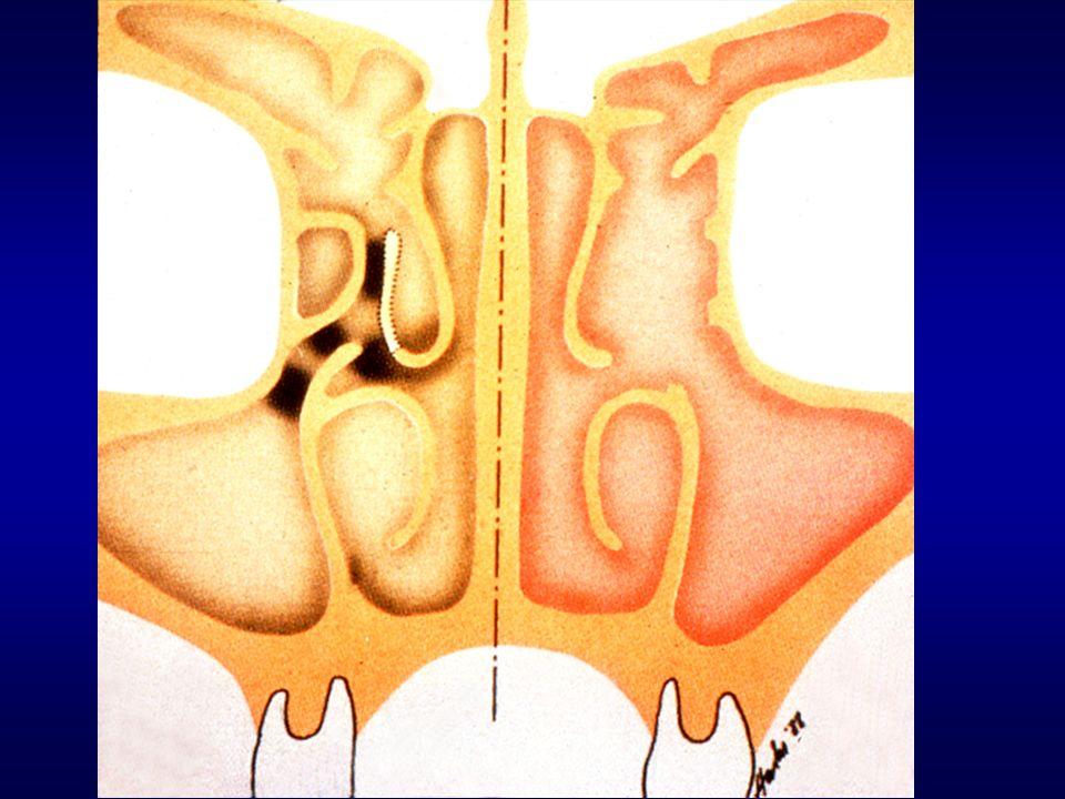 Rhinosinusitis Allergic (seasonal or perennial) Infective (acute or chronic) Structural (polyps, septum, turbinates, etc) Other (idiopathic, NARES, hormonal, etc) Differential Diagnosis