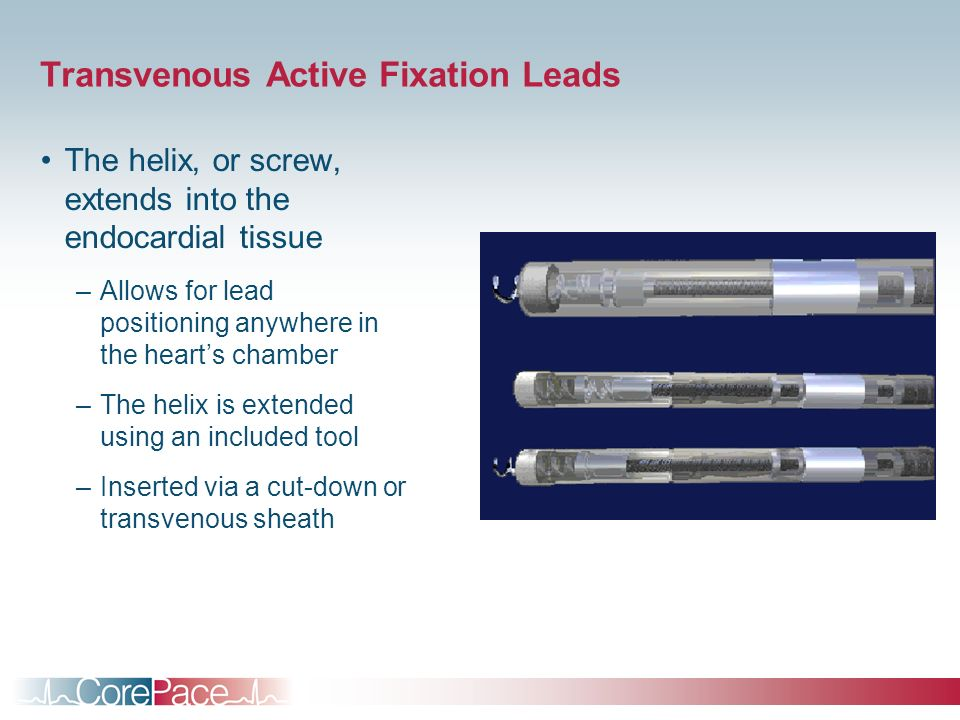Transvenous Active Fixation Leads The helix, or screw, extends into the endocardial tissue –Allows for lead positioning anywhere in the hearts chamber