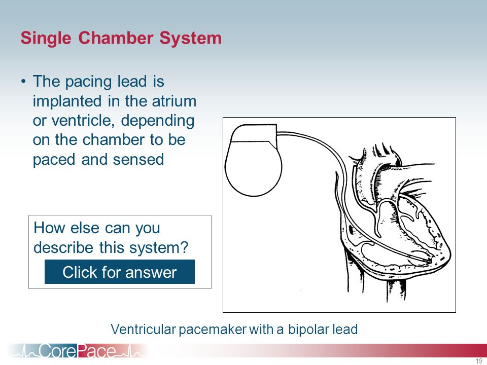 19 Single Chamber System The pacing lead is implanted in the atrium or ventricle, depending on the chamber to be paced and sensed How else can you des
