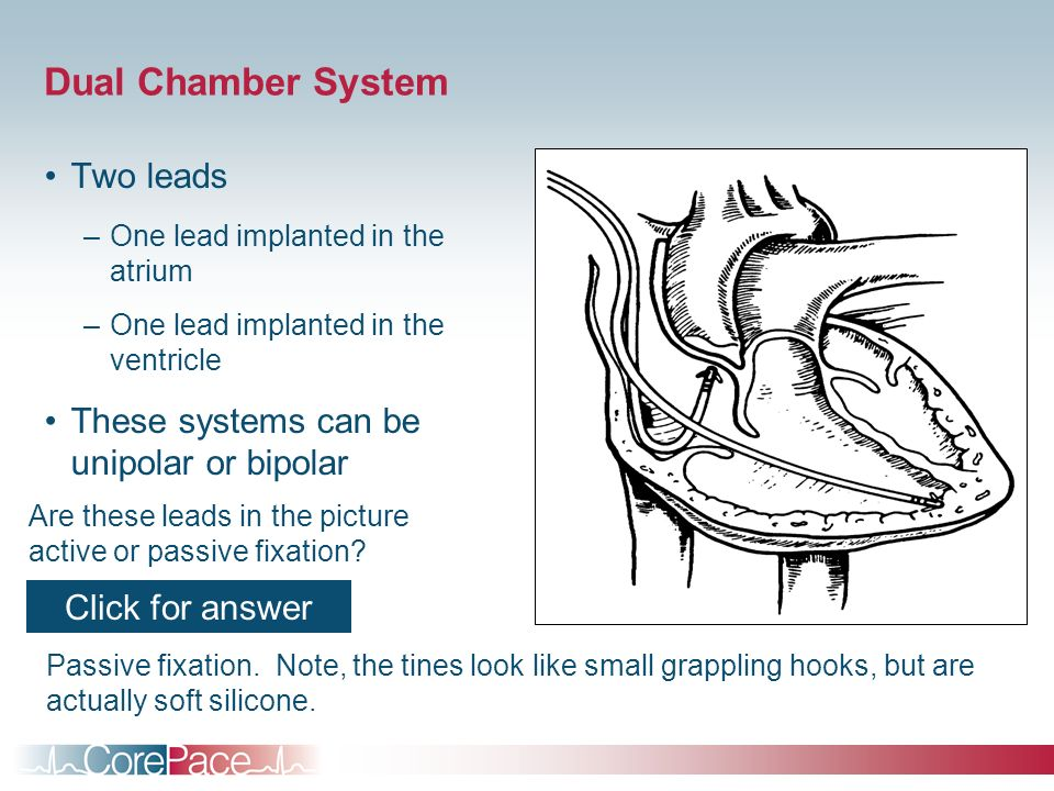 Dual Chamber System Two leads –One lead implanted in the atrium –One lead implanted in the ventricle These systems can be unipolar or bipolar Are thes