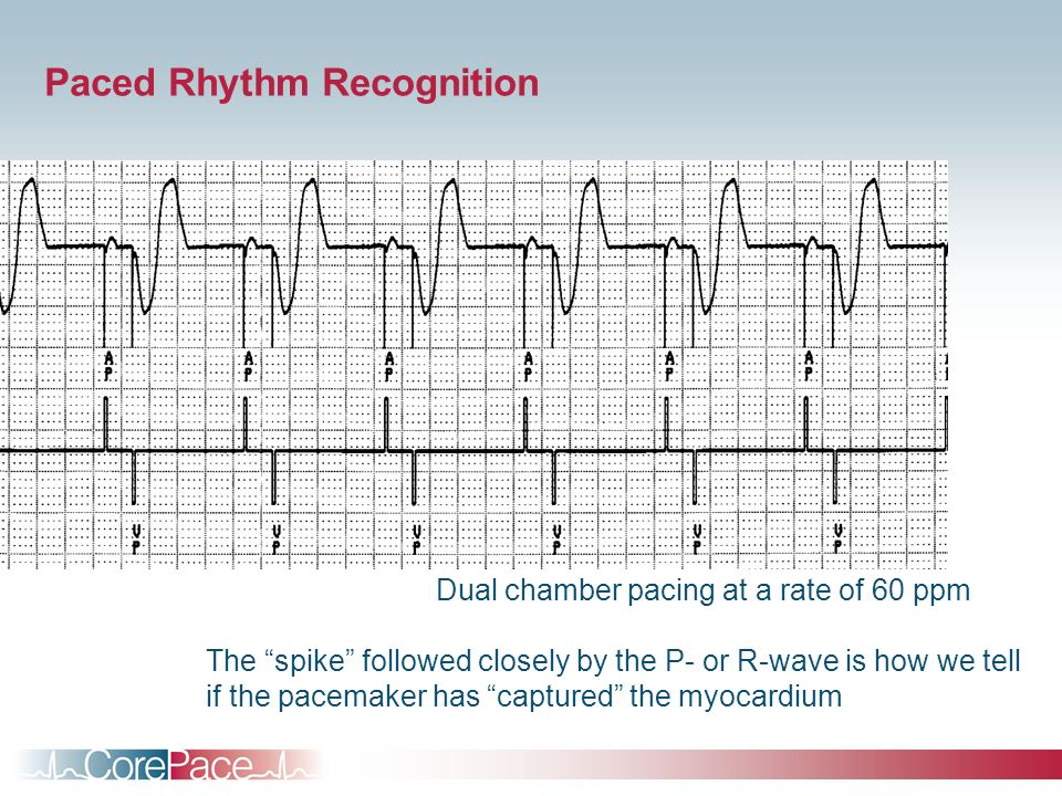 Paced Rhythm Recognition Dual chamber pacing at a rate of 60 ppm The spike followed closely by the P- or R-wave is how we tell if the pacemaker has ca
