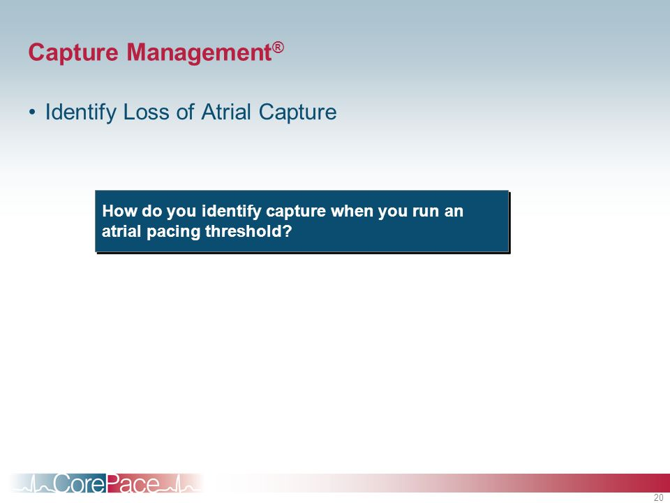 20 Capture Management ® Identify Loss of Atrial Capture How do you identify capture when you run an atrial pacing threshold?