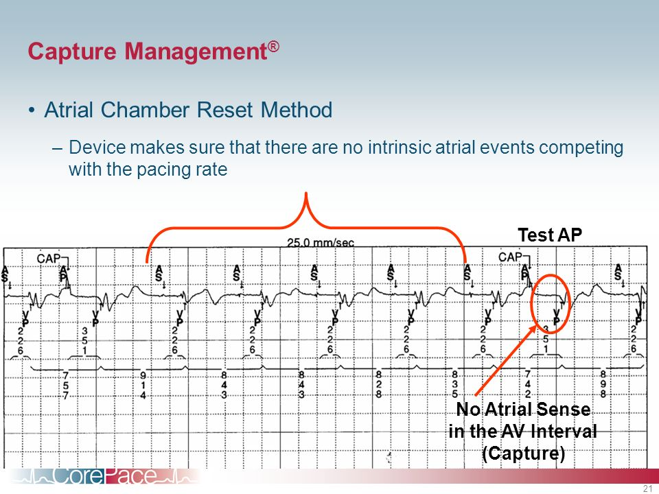 21 Capture Management ® Atrial Chamber Reset Method –Device makes sure that there are no intrinsic atrial events competing with the pacing rate Test A