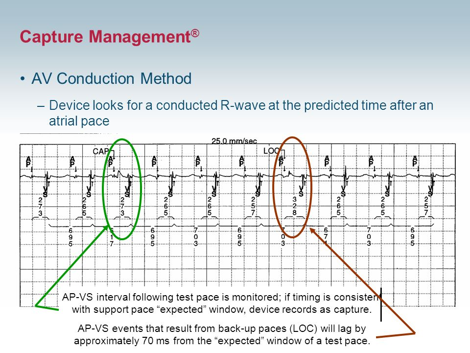 22 AV Conduction Method –Device looks for a conducted R-wave at the predicted time after an atrial pace AP-VS interval following test pace is monitore