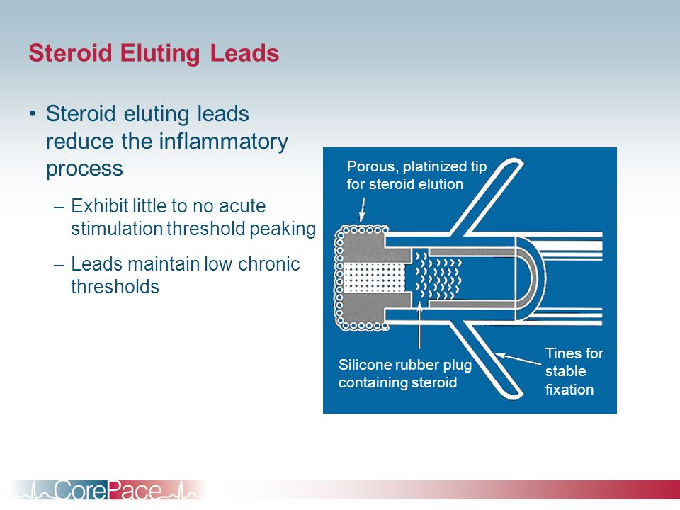 Steroid Eluting Leads Steroid eluting leads reduce the inflammatory process –Exhibit little to no acute stimulation threshold peaking –Leads maintain