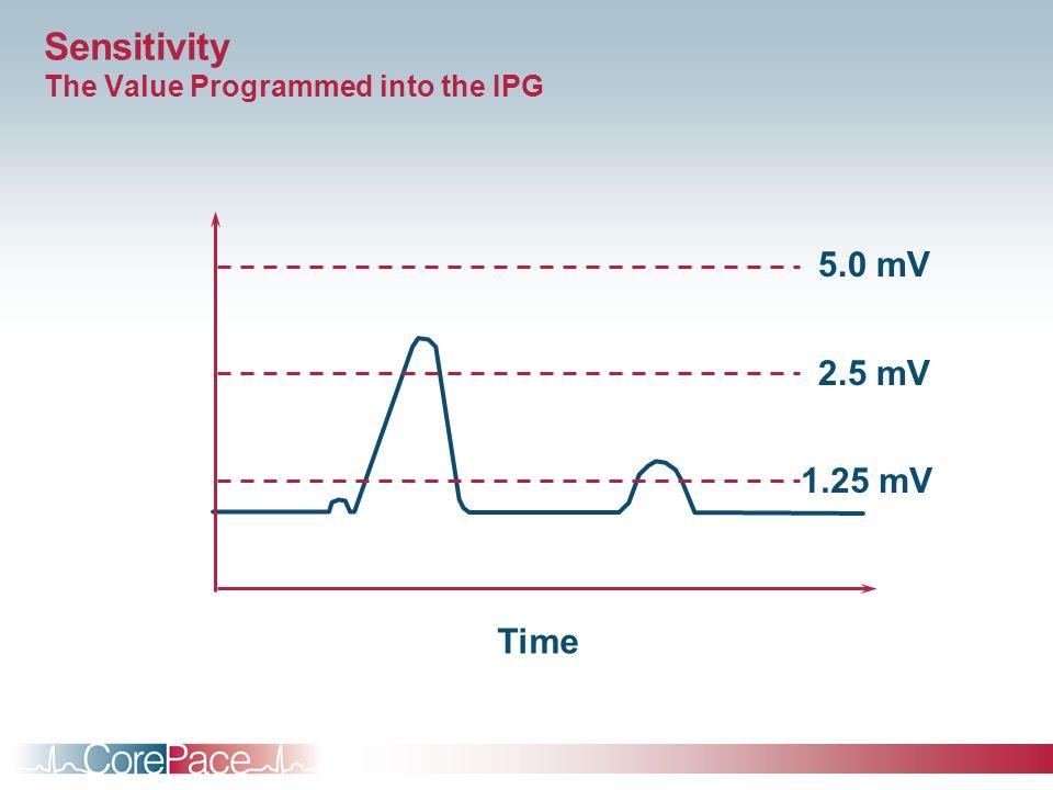 Sensitivity The Value Programmed into the IPG Time 5.0 mV 2.5 mV 1.25 mV