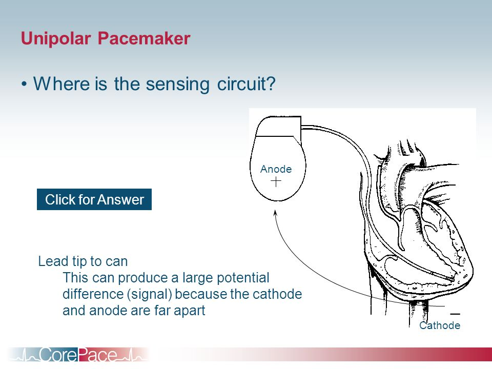 Unipolar Pacemaker Where is the sensing circuit? _ Cathode Anode Lead tip to can This can produce a large potential difference (signal) because the ca